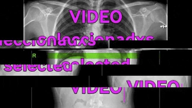vídeo selección materic.org