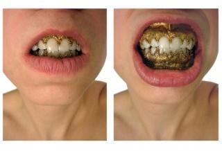 Lauren Kalman, Hard Wear (Oral Rims), 2006, inkjet print, Courtesy of Sienna Patti Contemporary