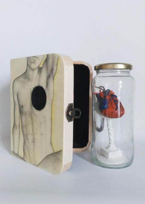Exposición Arte Intruso: Bilis negra, de Martín Supercolores