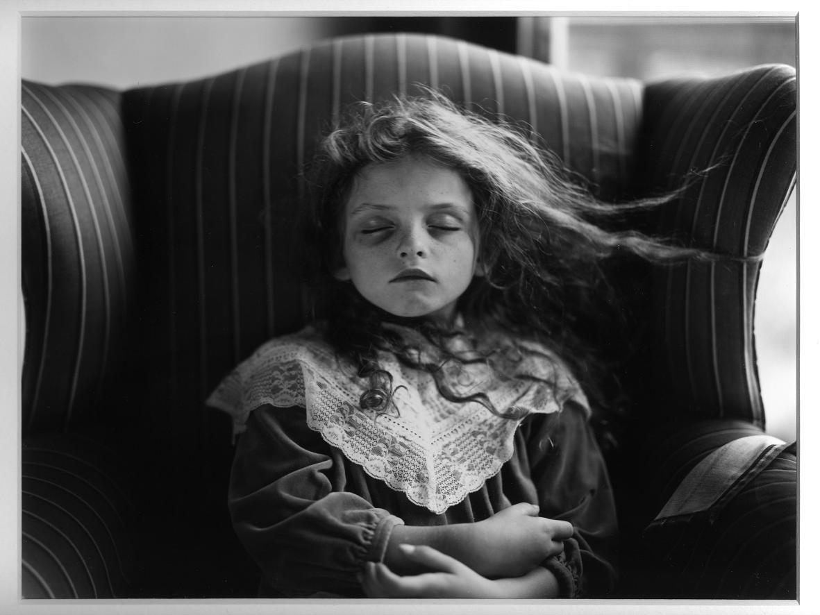 """Black eye, serie """"Immediate family"""" (1991) - Sally Mann"""